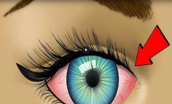 7 coisas que seus olhos podem dizer sobre sua saúde 10