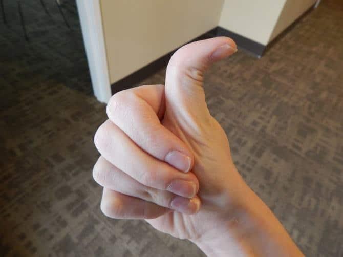 6 sinais que fazem do seu corpo algo único 6