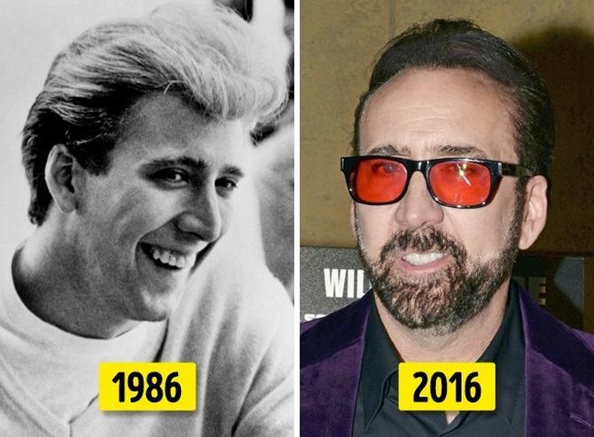 24 transformações de celebridades que o deixarão chocado 5