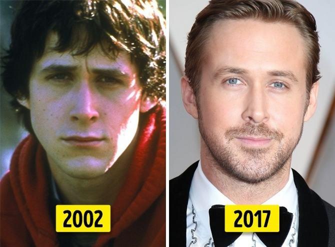 24 transformações de celebridades que o deixarão chocado 7