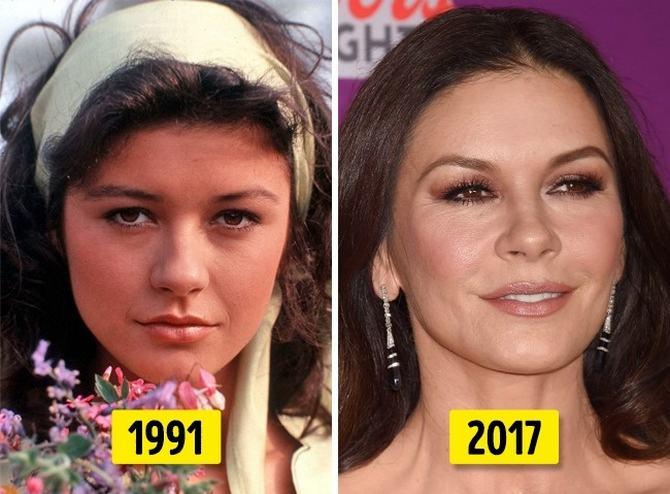 24 transformações de celebridades que o deixarão chocado 18