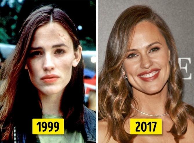 24 transformações de celebridades que o deixarão chocado 22