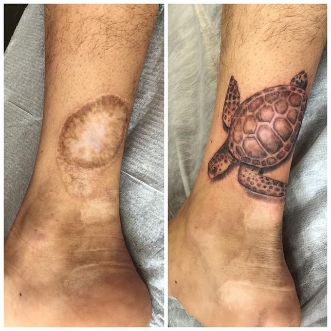 21 tatuagens que transformam cicatrizes em obras de arte 12