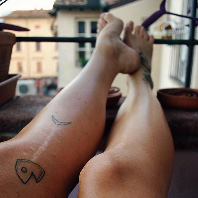 21 tatuagens que transformam cicatrizes em obras de arte 17