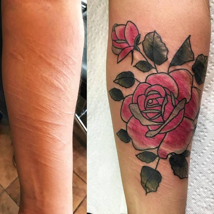 21 tatuagens que transformam cicatrizes em obras de arte 22