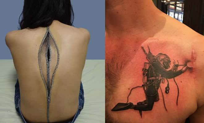 21 tatuagens que transformam cicatrizes em obras de arte 5