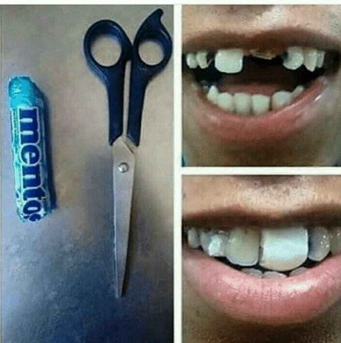 Sem dinheiro para um dentista