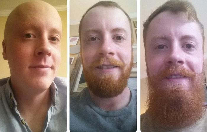 20 fotos que comprovam o crescimento da barba muda tudo 8