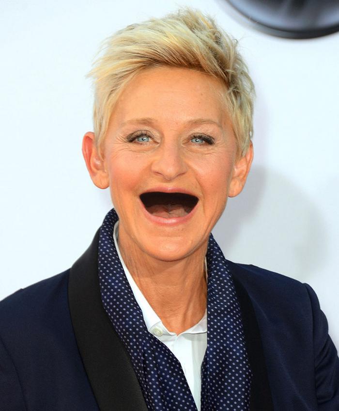 20 celebridades sem dentes 6