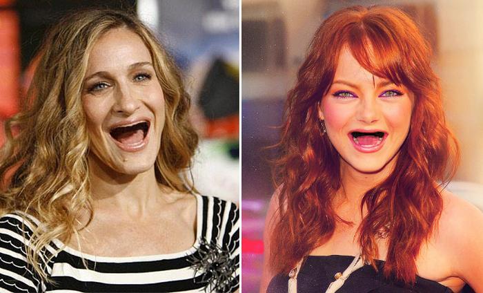 20 celebridades sem dentes 8