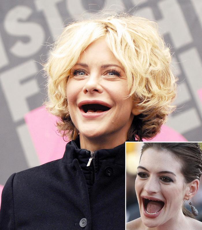 20 celebridades sem dentes 10