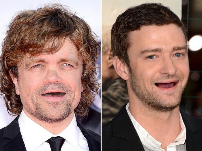 20 celebridades sem dentes 16