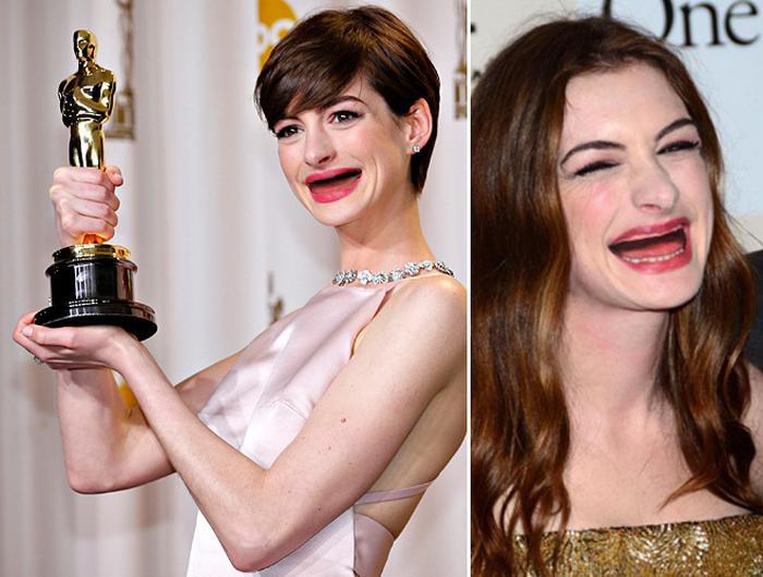 20 celebridades sem dentes 14