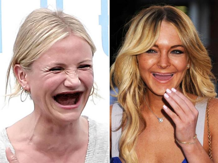 20 celebridades sem dentes 21