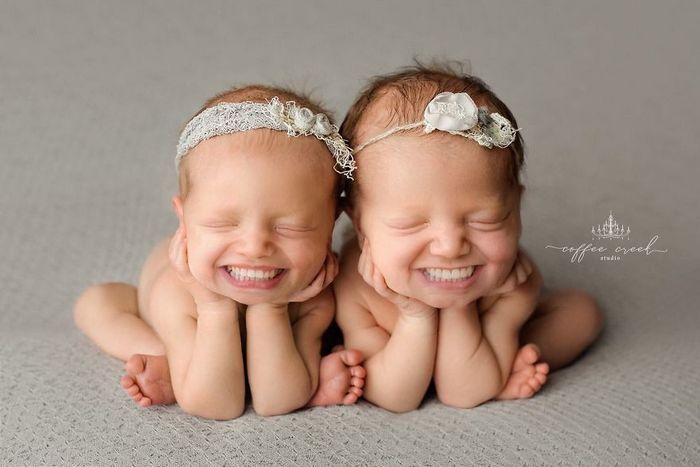E se os bebês nascessem com dentes? (16 fotos) 4