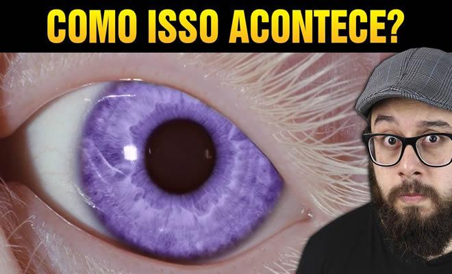O raro caso dos olhos violeta, como isso acontece? 1