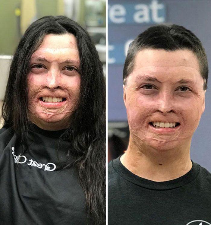 25 motivos para para doar seu cabelo. Antes e depois de pessoas que doaram seus cabelos para pessoas doentes 13