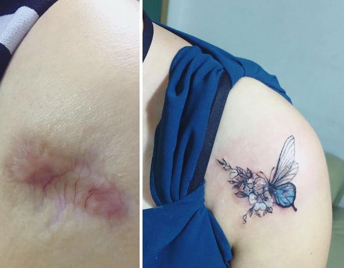 30 pessoas que pediram para encobrir suas cicatrizes com tatuagem 8