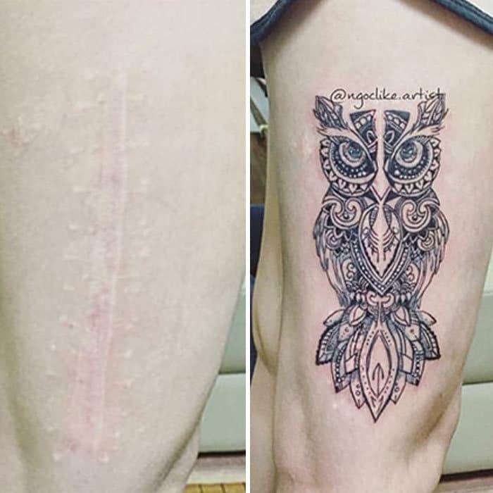 30 pessoas que pediram para encobrir suas cicatrizes com tatuagem 17