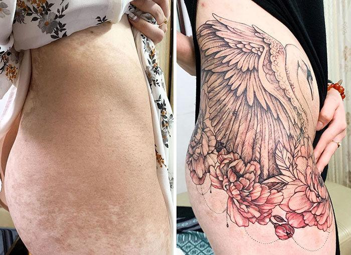30 pessoas que pediram para encobrir suas cicatrizes com tatuagem 19