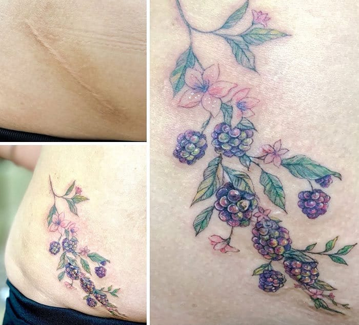30 pessoas que pediram para encobrir suas cicatrizes com tatuagem 20