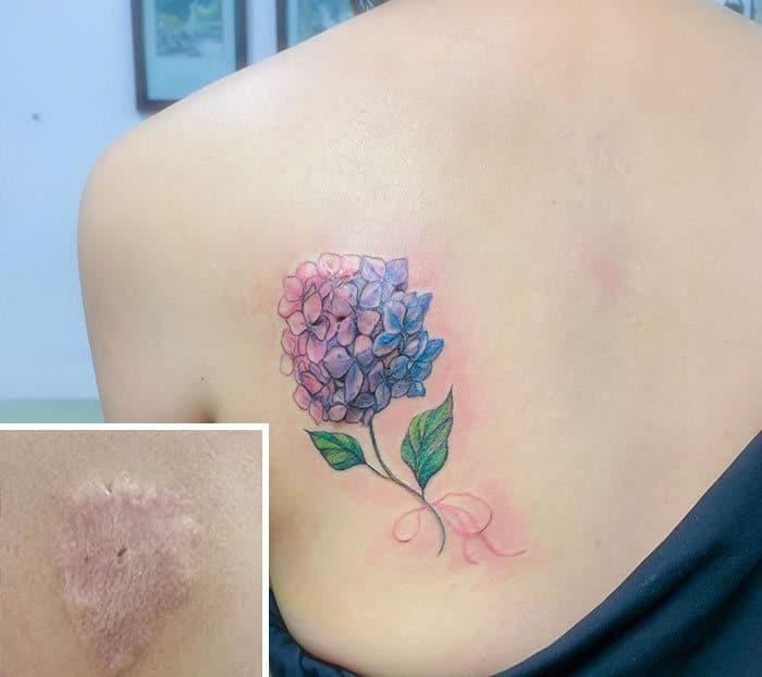 30 pessoas que pediram para encobrir suas cicatrizes com tatuagem 21
