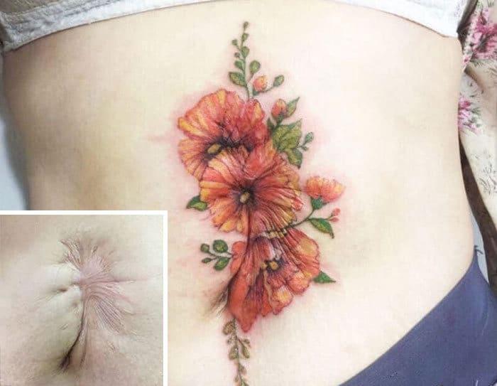 30 pessoas que pediram para encobrir suas cicatrizes com tatuagem 27