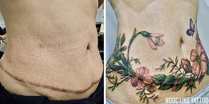 30 pessoas que pediram para encobrir suas cicatrizes com tatuagem 28