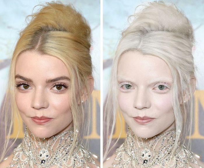 Como seriam 15 celebridades se fossem albinos 6
