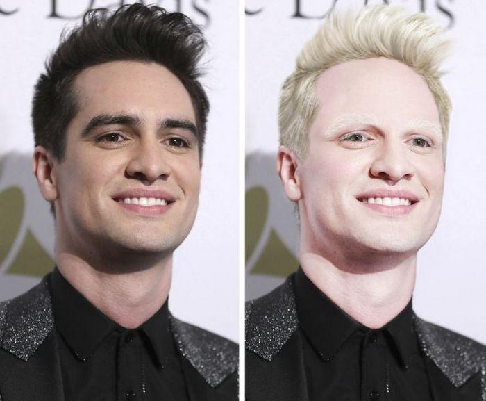 Como seriam 15 celebridades se fossem albinos 13