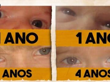 É possível nascer com os olhos pretos? 3