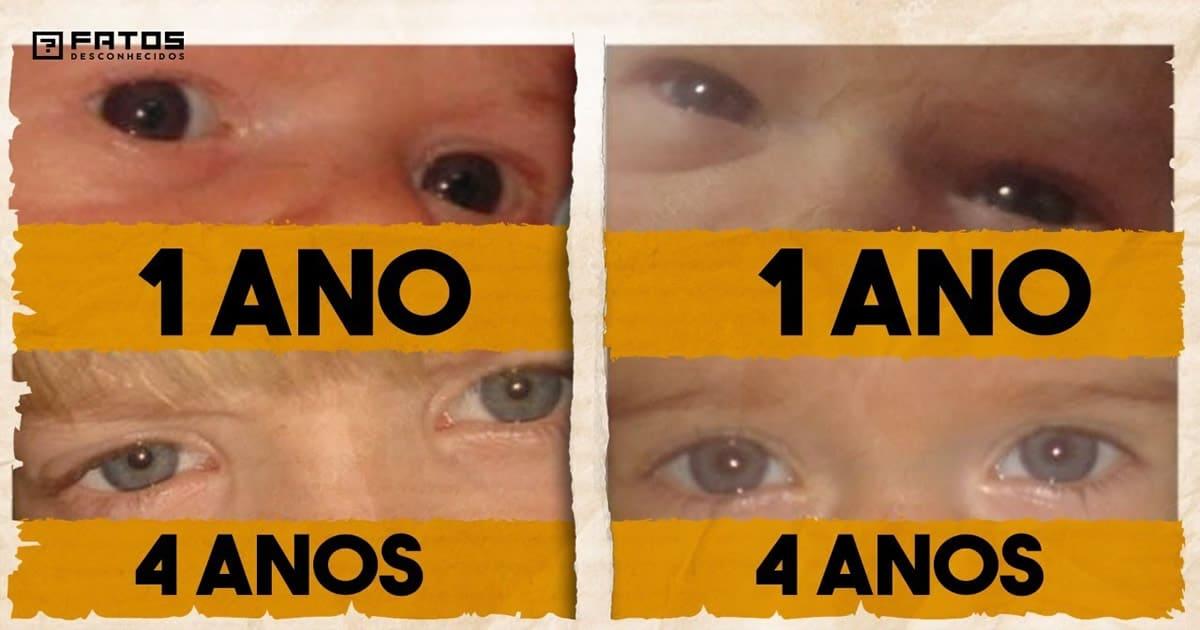 É possível nascer com os olhos pretos? 38