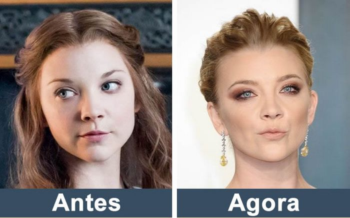 Como estão os atores de Game of Thrones nos dias de hoje (14 fotos) 6