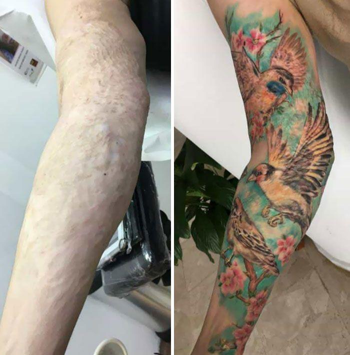 46 tatuagens incríveis que transformaram cicatrizes e marcas de nascença em obras de arte 20
