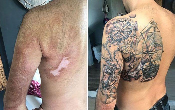 46 tatuagens incríveis que transformaram cicatrizes e marcas de nascença em obras de arte 22