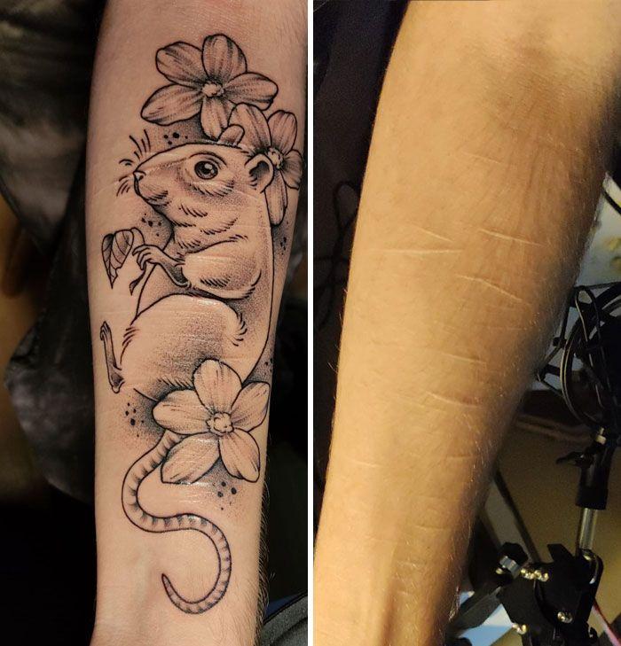 46 tatuagens incríveis que transformaram cicatrizes e marcas de nascença em obras de arte 23