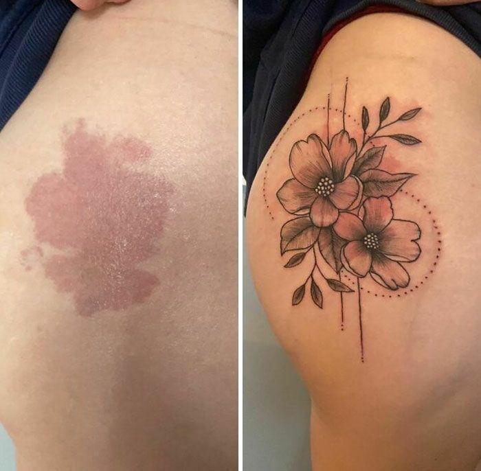 46 tatuagens incríveis que transformaram cicatrizes e marcas de nascença em obras de arte 26