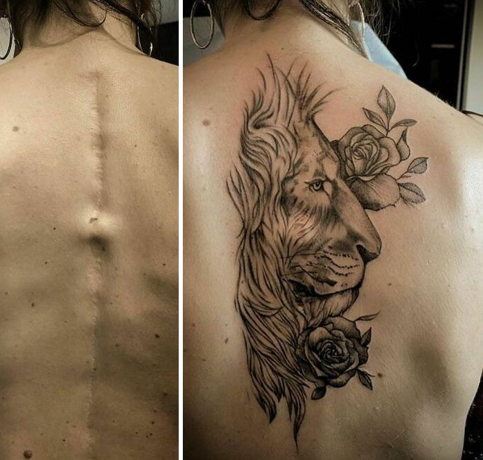 46 tatuagens incríveis que transformaram cicatrizes e marcas de nascença em obras de arte 28