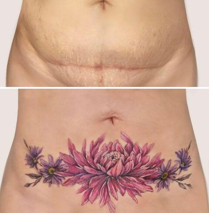 46 tatuagens incríveis que transformaram cicatrizes e marcas de nascença em obras de arte 29