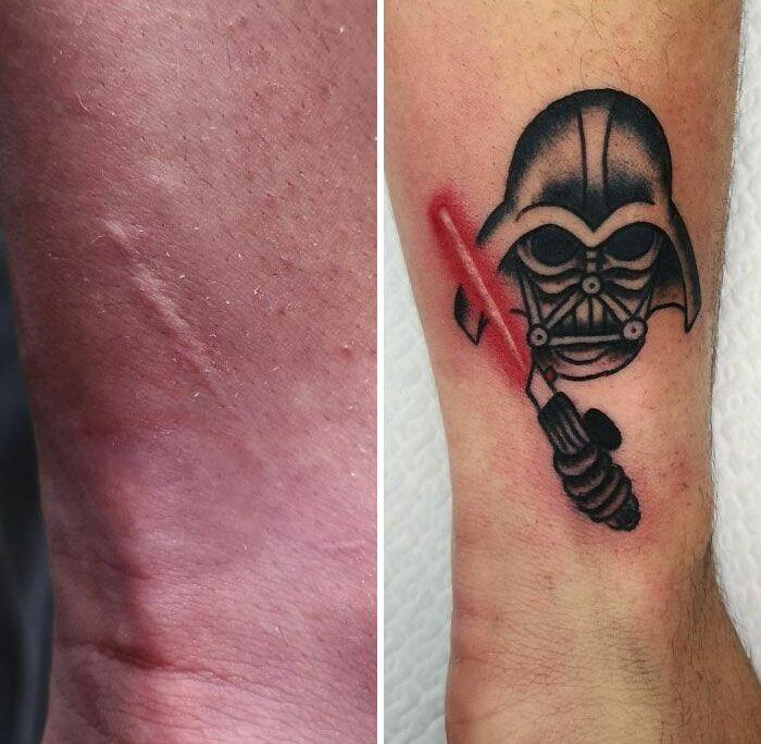 46 tatuagens incríveis que transformaram cicatrizes e marcas de nascença em obras de arte 34