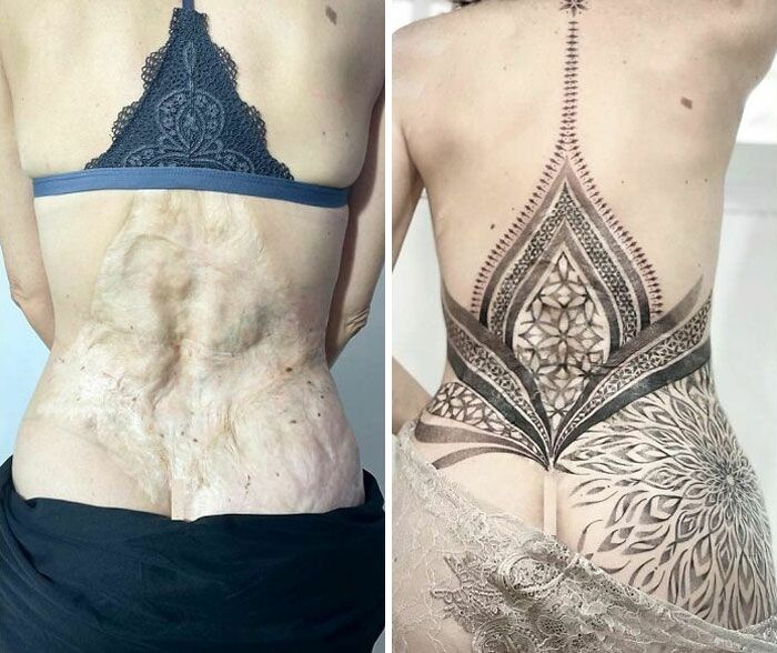 46 tatuagens incríveis que transformaram cicatrizes e marcas de nascença em obras de arte 38