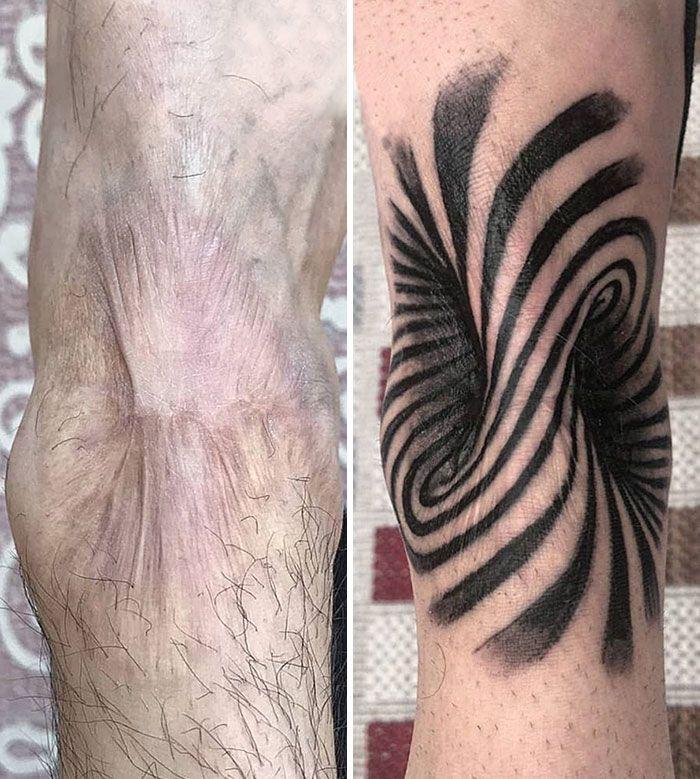 46 tatuagens incríveis que transformaram cicatrizes e marcas de nascença em obras de arte 47